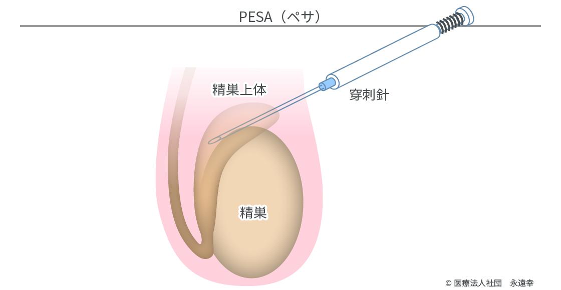 遅い 卵胞 成長